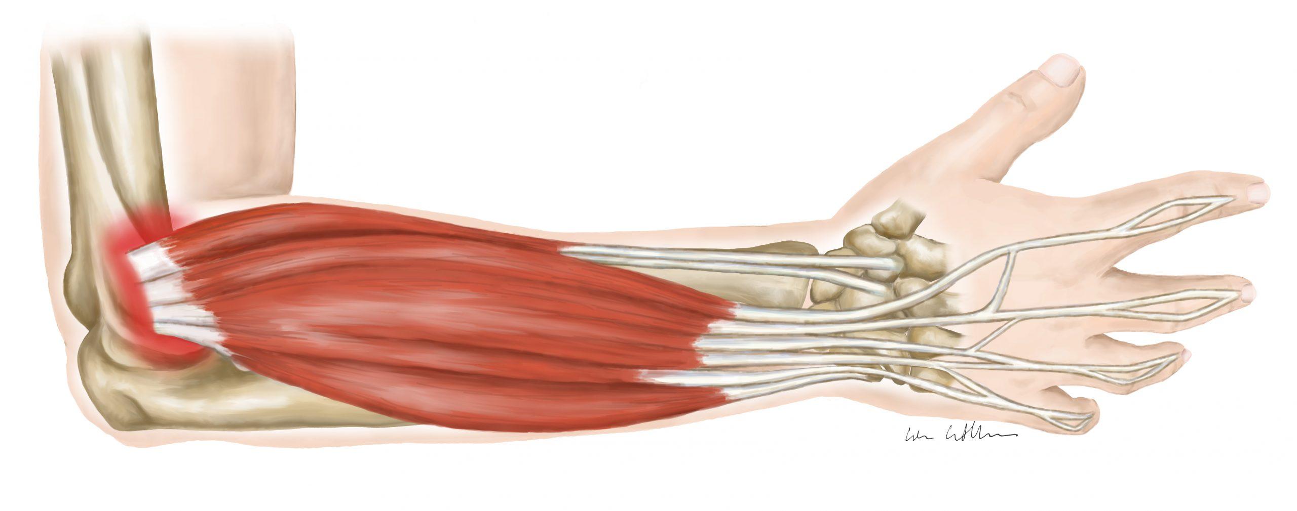 Eine Illustration von Lisa Cuthbertson die die Anatomie des Unterarms mit Tennisellbogen zeigt