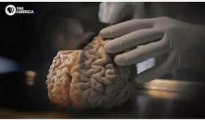 nova-brain