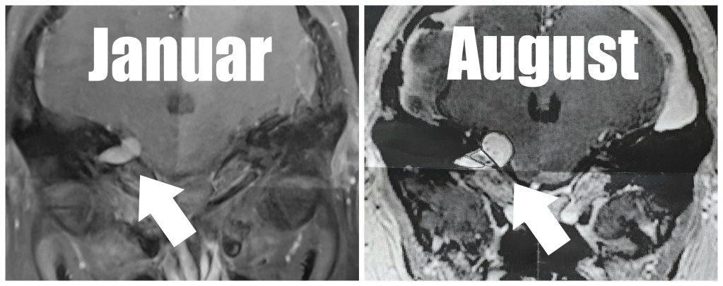 Acusticus neurom