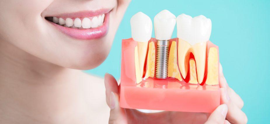 De ce am ales să apelez la implant dentar?