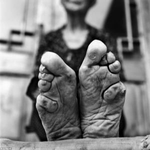Toes bent under the foot to create a pointed look to the feet but crippling the Woman