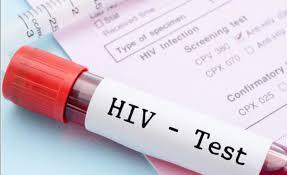 Casos nuevos de VIH se han triplicado en ocho años en jóvenes mexicanos