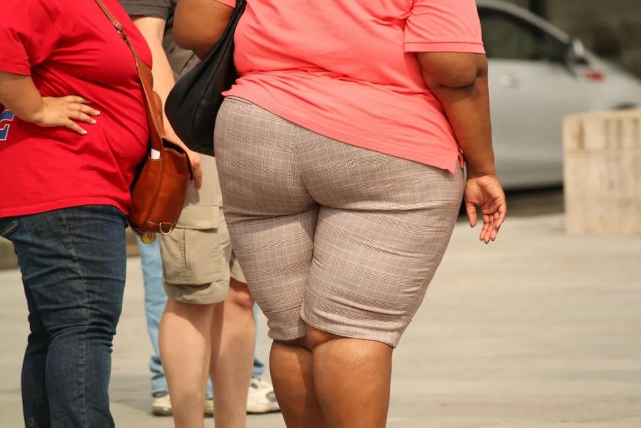 Obesidad mórbida en adultos jóvenes puede multiplicar riesgo de Covid grave
