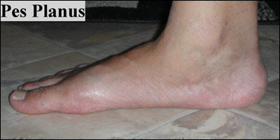 Pes Planus | List Of Disease