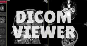 dicom viewer