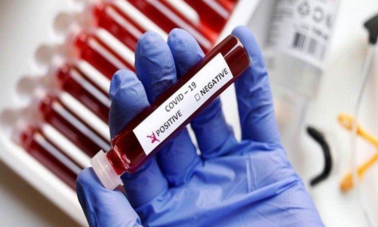 Prayagraj Corona Update: Investigation Of Six Thousand, 89 New Corona Infected With Sp Intelligence – Prayagraj Corona Update: छह हजार की जांच, एसपी इंटेलीजेंस सहित 89 नए कोरोना संक्रमित