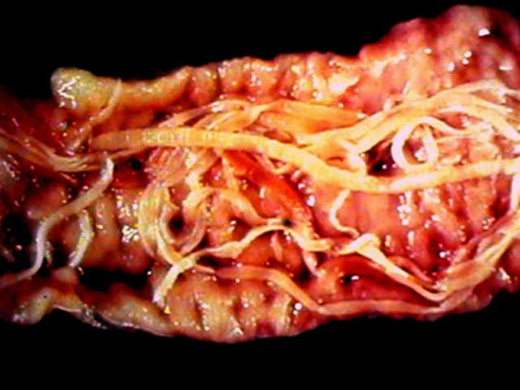 Top 10 Most Disgusting Parasites - Listverse
