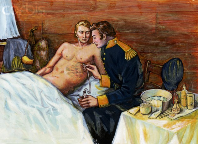 Illustration of Dr. William Beaumont Inserting Tube In Alexis St. Martin's Torso