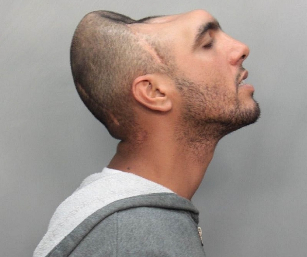 Opinion you man with half head mugshot agree, this