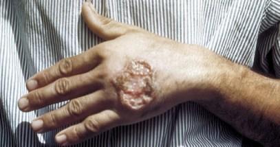 8-Leishmania