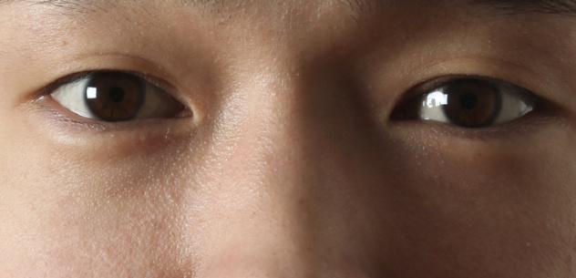 Eyeball Trick Again