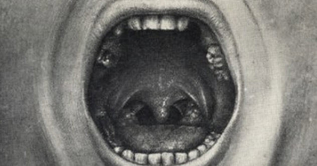 1a-cotton-teeth-pulling