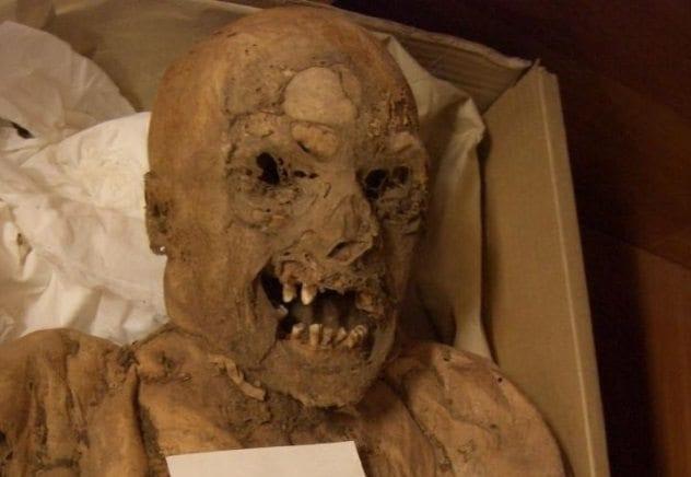 cancer-mummy