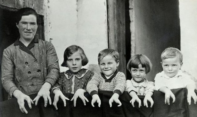 Ectrodactyly-Family-1930