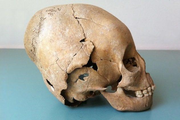 Elongated Roman Skull