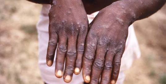 Facts about Monkeypox