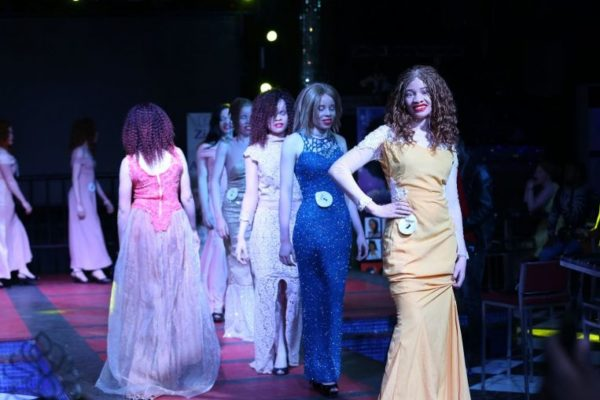 Miss albinism beauty pageant