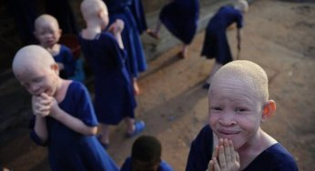 Tanzania has the world's highest rate of albinism.