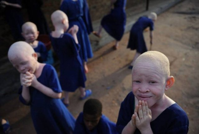 Malawi: UN Condemns 'Ritual Killings of Albinos' As Persons With Albinism in Malawi Face 'Total Extinction'