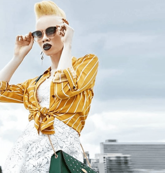South African lawyer becomes first model with albinism to cover Vogue