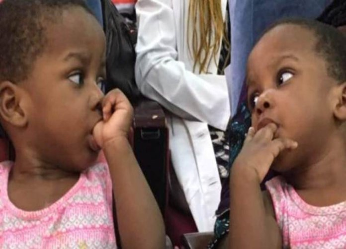 78 Nigerian Doctors Successfully Separate one-year-old Conjoined Twins