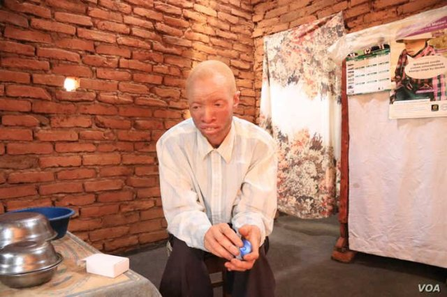 Albino killings: Malawi Gives personal Security Alarms to Albinos