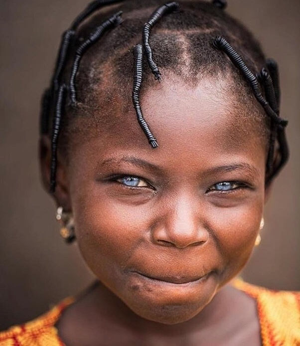The Myths About Black Africans with Blue Eyes