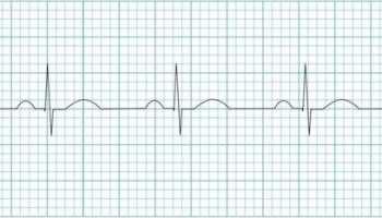 Sinus Arrhythmia • LITFL Medical Blog • ECG Library Basics