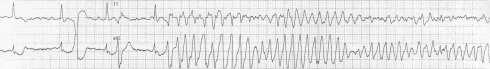 Polymorphic VT and Torsades de Pointes (TdP) • LITFL