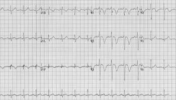 ECG changes in Pulmonary Embolism • LITFL • ECG Library