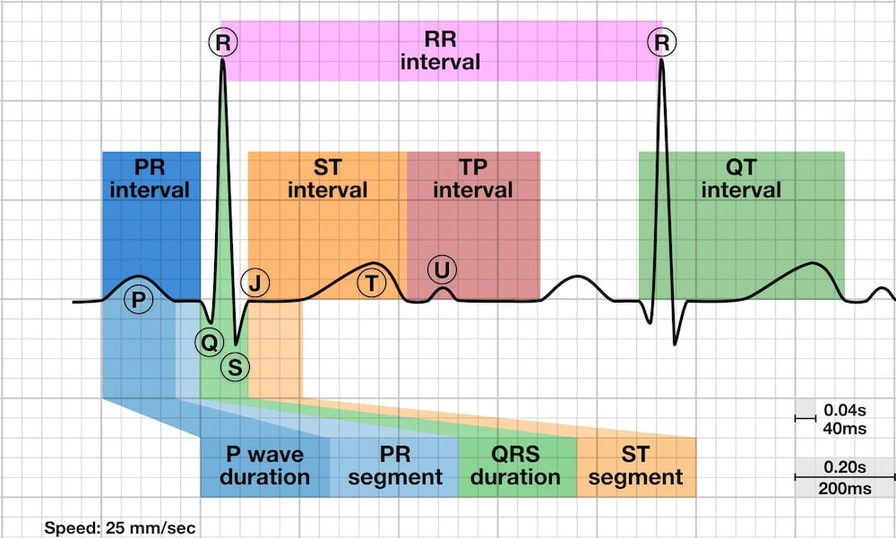 Great Ekg Made Easy These Variations Are Divided Up Into 3