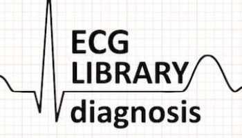 Premature Atrial Complex (PAC) • LITFL • ECG Library Diagnosis