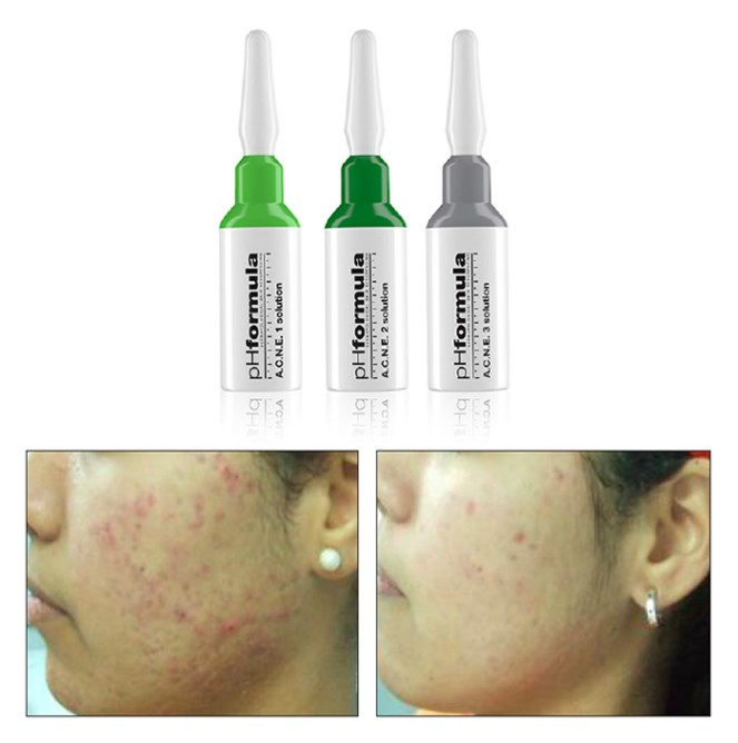 treatment_ACNE