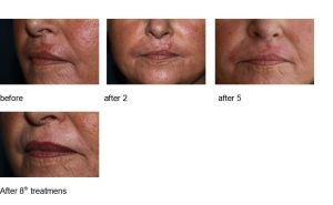 BYONIK SCAR BEFORE & AFTER