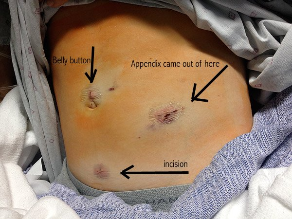 ruptured appendix, appendectomy, appendix burst, appendicitis