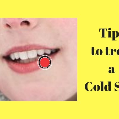 Tips to Treat a Cold Sore Naturally