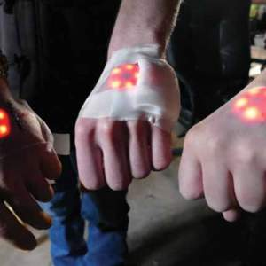 Three people hold their hands out to show lighted implants under the skin on the backs of their hands.