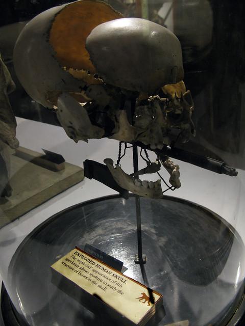 exploded human skull
