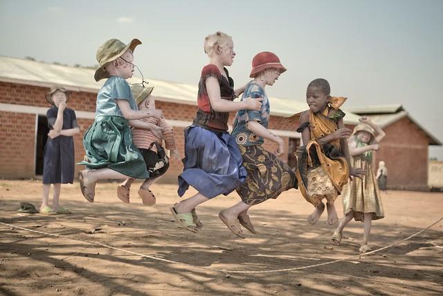 Niños-albinos-saltando-a-la-comba-autora-Ana-Palacios-cedio-los-derechos