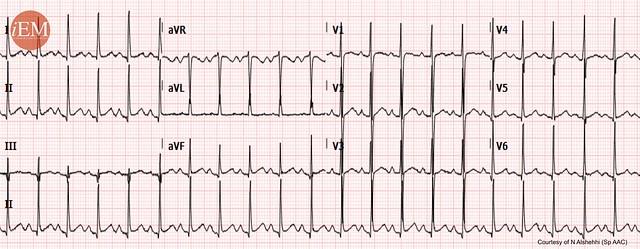 755.3 - tachycardia