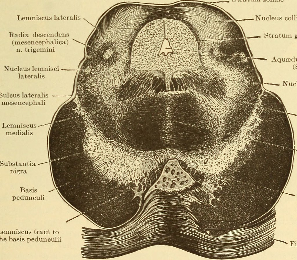 Image From Page 123 Of Diseases Of The Nervous System 1