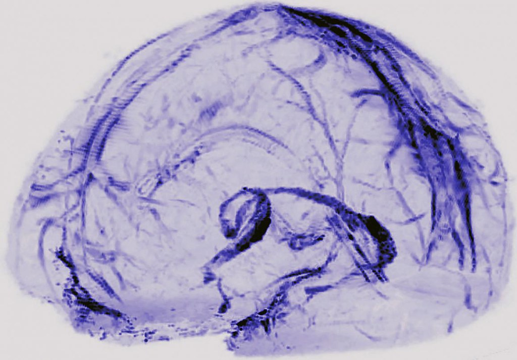 Brain drainage system