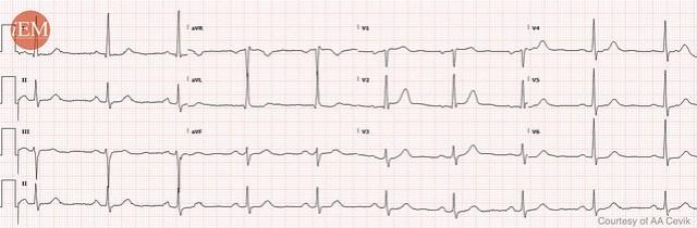 855 - bradycardia