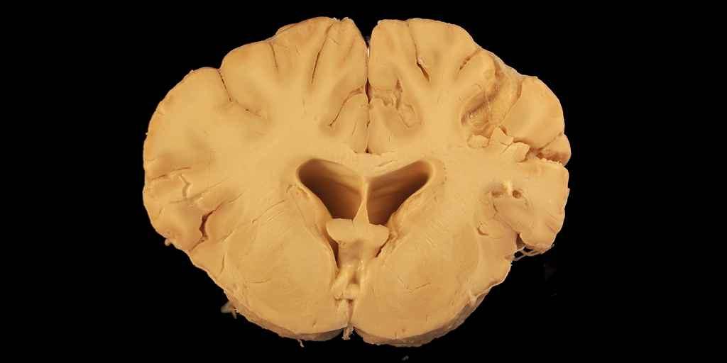 nouvelle-théorie-sur-la-cause-de-la-maladie-Alzheimer