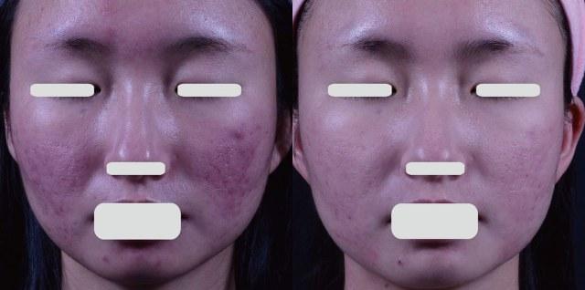 酒糟性皮膚炎的症狀就是皮膚敏感,因為皮脂腺分泌量越來越多,皮膚一直不斷的發炎,要治療就要靠雷射跟口服A酸。