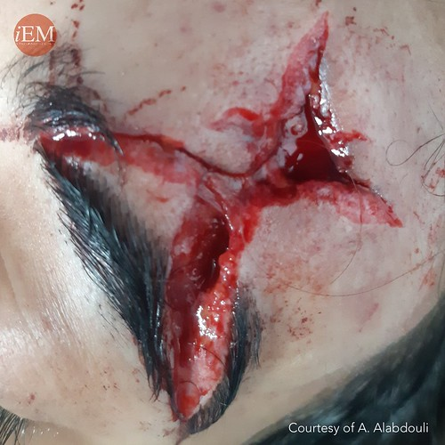 Star shaped wound
