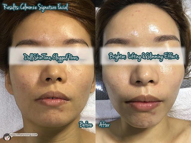 celmonze-the-signature-facial-results