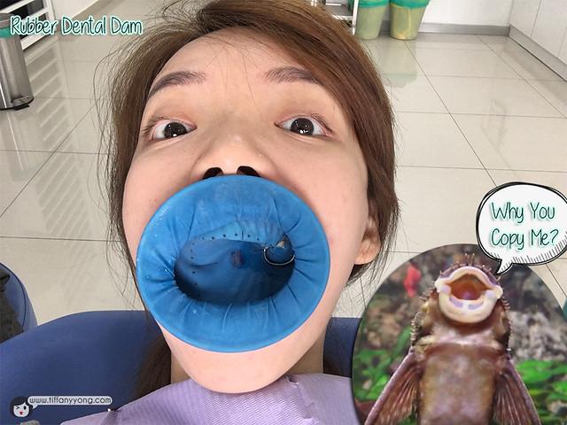 icare-dental-review-rubber-dam
