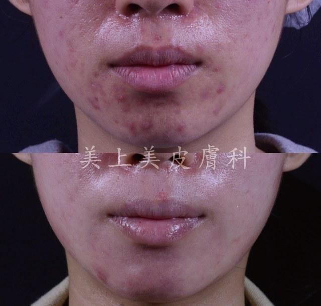 我們的皮脂腺的開口就是毛孔,皮脂腺堵塞排不出來,就會堆積成粉刺或是皮脂管絲!