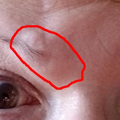 Eye brow swelling